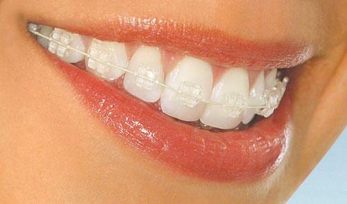 прикус, зубы