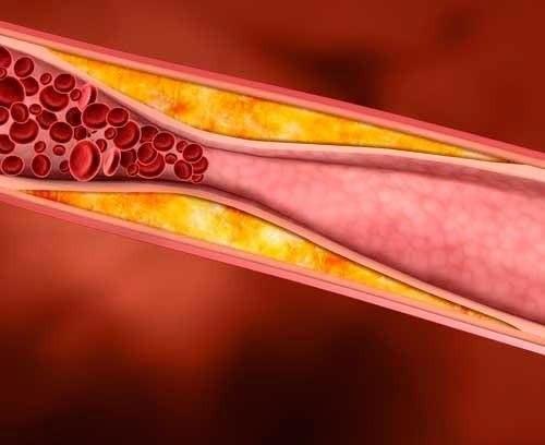 Врачи рассказали, почему холестерин опасен для здоровья