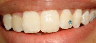 украшения для зубов, имплантанты, драгоценные украшения, стоматолог