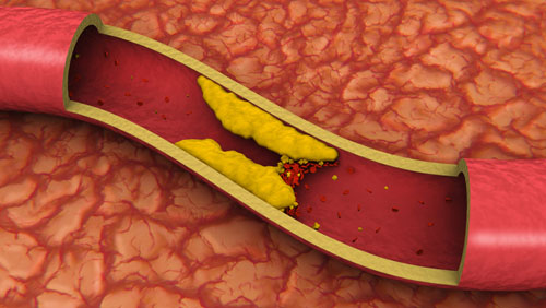 холестерин, питание